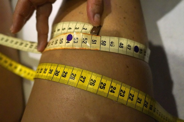 Cryothérapie traitement cellulite
